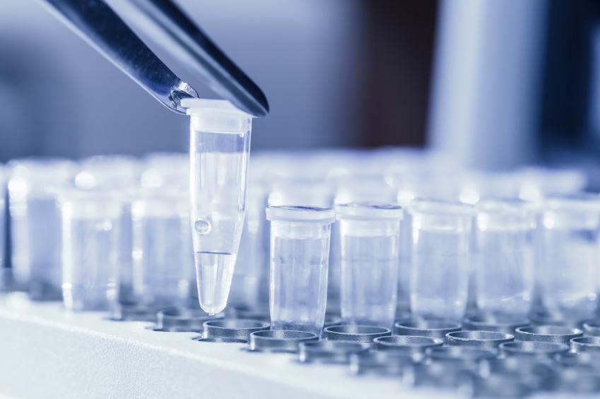 Moderne Pflanzenzüchtung spielt sich im Labor ab. Dort analysieren die Wissenschaftler das Erbgut der Pflanzen.