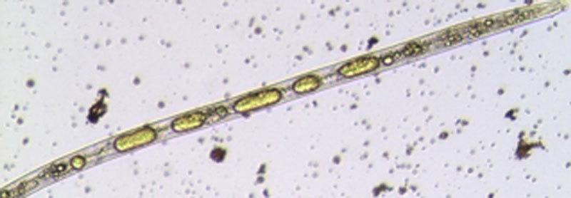 Mikroskopische Aufnahme des Fadenwurms Radopholus similis: In dem Nematoden sind deutlich die Fetttröpfchen zu sehen, die die Abwehrsubstanz, das Phenylphenalenon Anigorufon (gelb), enthalten.