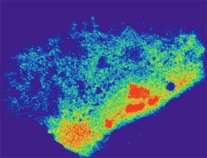 mRNA Verteilung im Cytoplasma einer lebenden menschlichen Zelle unter Stress. (Bildquelle: © UC San Diego Health)
