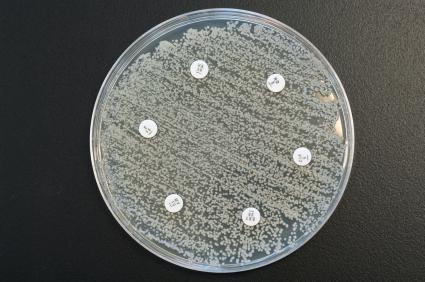 Hier wurden sechs Antibiotika getestet - Normalerweise bildet sich um diese Stellen ein Hof, der frei ist von Bakterien. (Quelle:© iStockphoto.com/ Zmeel Photography)