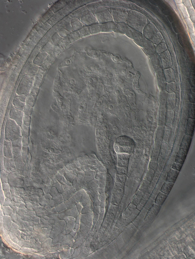 Embryo und Endosperm im sich entwickelnden Samen von Arabidopsis-Pflanzen (lichtmikroskopische Aufnahme).