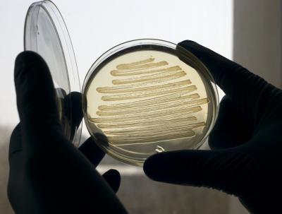 Biodiesel aus Bakterien klingt nach Science Fiction. Wissenschaftlern ist aber genau das gelungen: Spezialisierte Darmbakterien (E. coli) produzieren einen Biokraftstoff, der fast die gleichen Eigenschaften wie erdölbasierter, konventioneller Diesel besitzt.