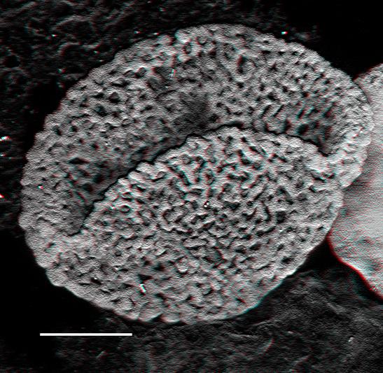 Blütenpflanzenähnliche Pollen aus der Trias.