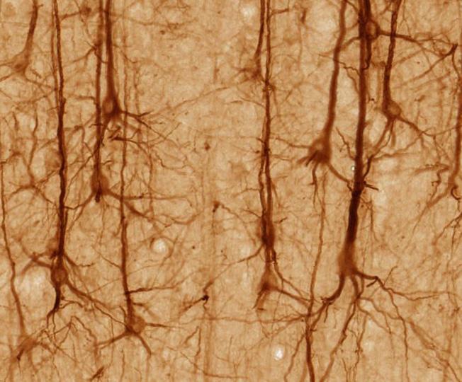 Säugetiere besitzen Neuronen. Ob auch Pflanzen über eine Art von Nervensystem verfügen, ist stark umstritten.