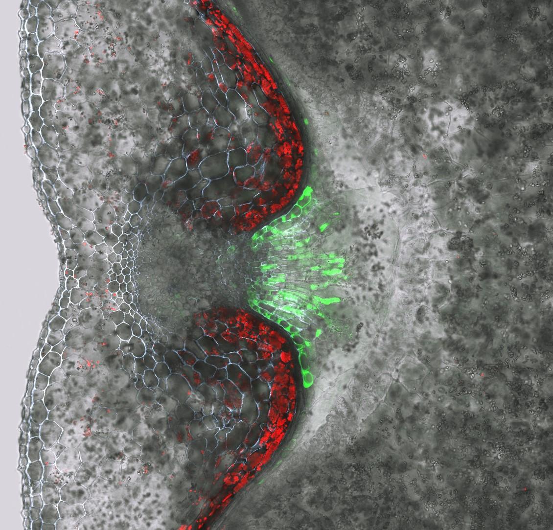 Aktivität des Jekyll-Promoters visualisiert: Das grün fluoreszierende Protein (GFP) wird als zellulärer Markereingesetzt, um andere Proteine sichtbar zu machen.