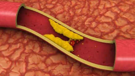 Ablagerungen in Blutgefäßen sind ein Risikofaktor für Herz-Kreislauf-Erkrankungen.