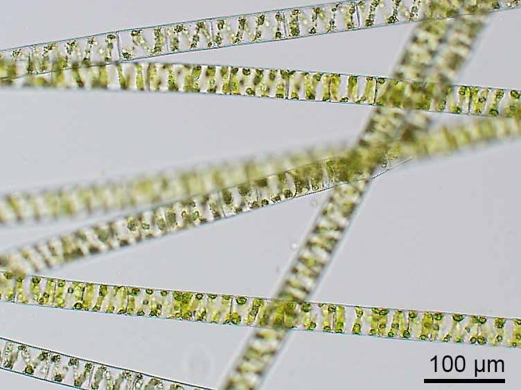In einem Punkt sind sich Biologen einig: Pflanzen haben ihren Ursprung in Grünalgen. (Bildquelle: © Gert Hansen, SCCAP, Copenhagen)
