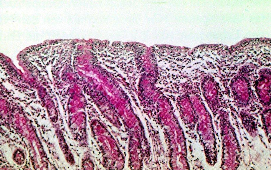 Bei Zöliakiekranken sind die Zotten der Dünndarmschleimhäute deutlich abgeflacht. Dies führt dazu, dass die Nährstoffaufnahme beeinträchtigt wird, was zu den charakteristischen Mangelerscheinungen führt. Normalerweise ist die Schleimhaut mit einer Vielzahl von fingerförmigen Zotten bestückt.