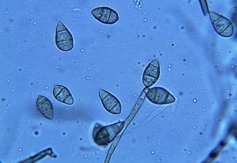 Pflanzen nutzen ein zweistufiges Abwehrsystem, um Krankheitserreger abzuwehren. Im Bild sind die Sporen des Reisbrands zu sehen, dem bedeutendsten Schädling der Reispflanze. (Bildquelle: © Donald Groth/ USDA Forest Service/ Wikimedia.org/ CC0 1.0)