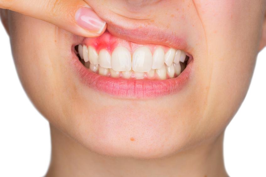 Auf Zähnen und Zahnfleisch tummeln sich über 700 verschiedene Bakterienarten, die Karies und Zahnfleischentzündungen verursachen können.