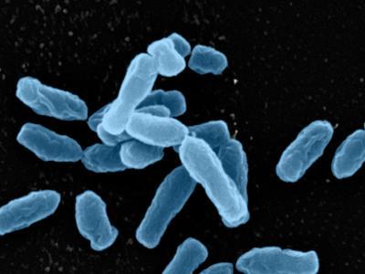 In den Bodenproben fanden die Forscher auch Bakterien der Gattung Ochrobactrum. Hier aufgenommen mit dem Rasterelektronenmikroskop. Sie zählen auch zum Stamm der Proteobakteria.